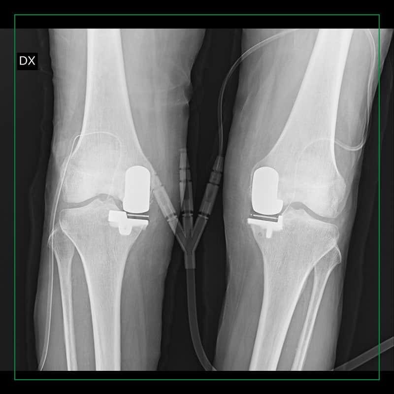 Controllo radiografico post-op in protesi parziale mediale bilaterale