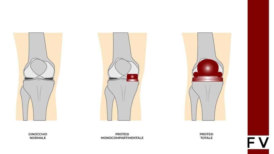 protesi parziale ginocchio