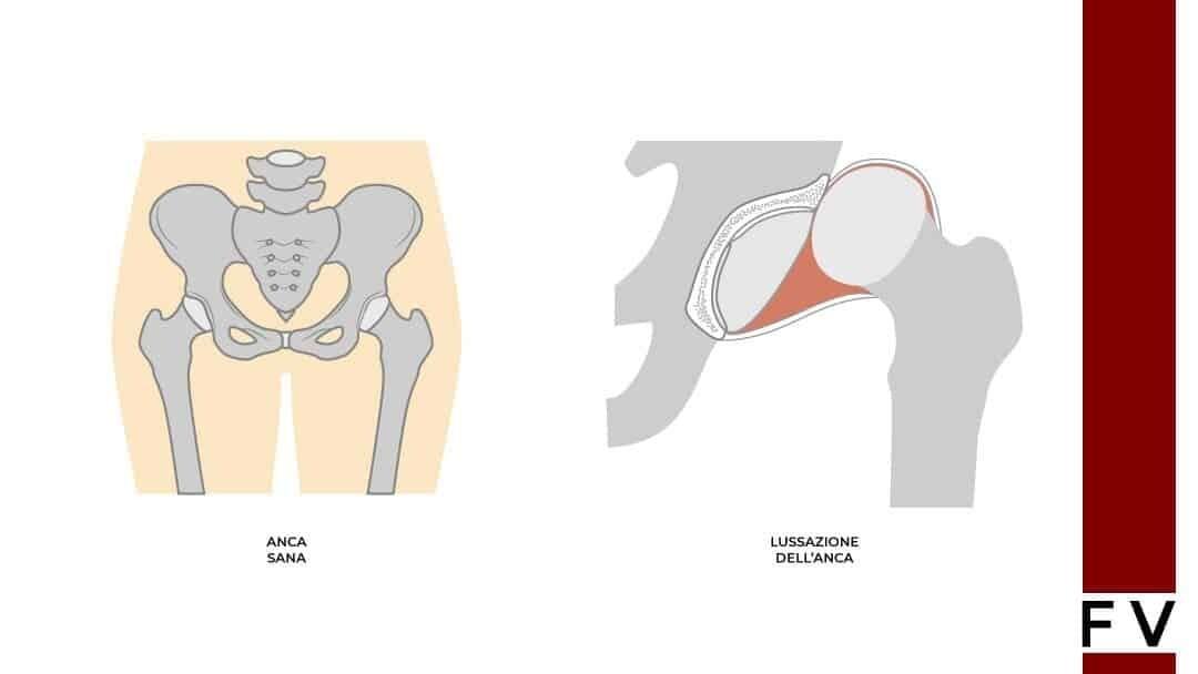 lussazione dell'anca