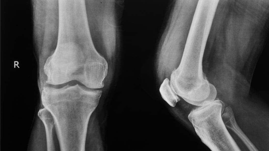 radiografia ginocchio sotto carico