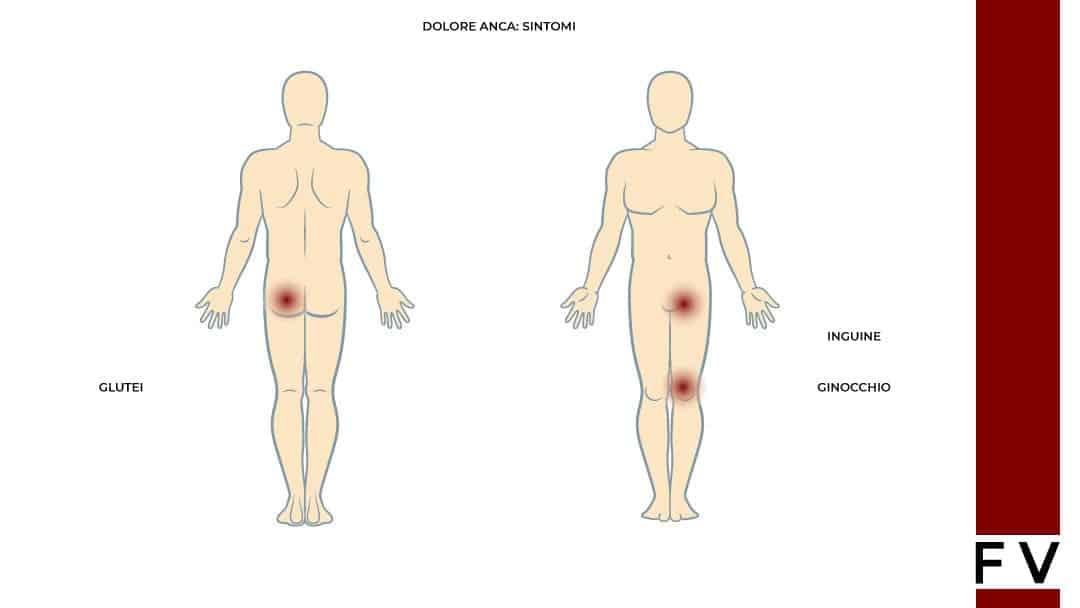 dolore all anca