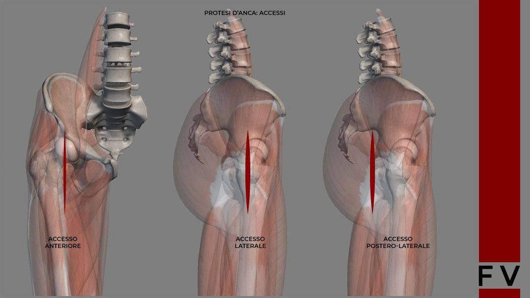 protesi anca accesso anteriore