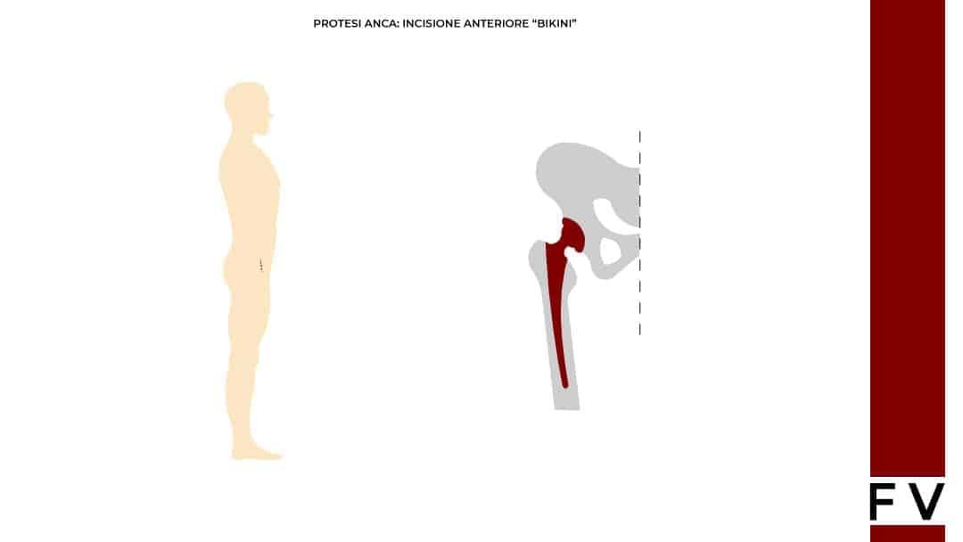 protesi anca accesso anteriore-bikini